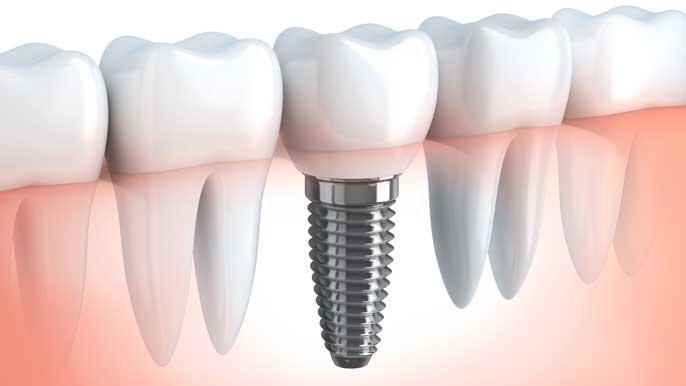 インプラントが入った歯茎のイラスト解説図