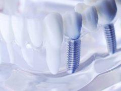 インプラントが入ってる歯の模型