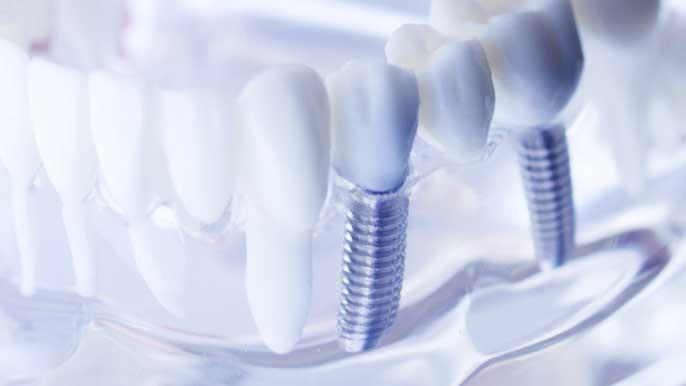 インプラントが入った歯の模型