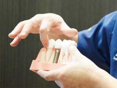 インプラントの入った歯の模型を使ってインプラントのメリットとデメリットを説明してる男性歯科医師