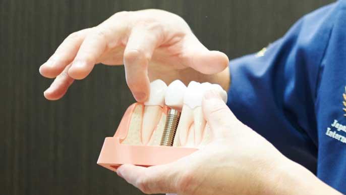 インプラントの入った模型を使ってメリットとデメリットを説明してる男性歯科医師